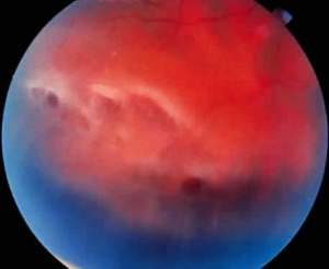 """... the patient had multiple retinal breaks and subsequent detachments, he was rushed over to ophthalmology to receive immediate surgical laser treatment to prevent a full-on retinal detachment..."""