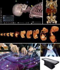 Anatomage Table